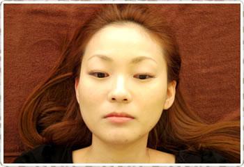 初回:施術前の顔のゆがみ状態